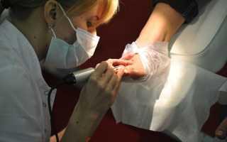 Медицинский педикюр при грибке ногтей, при вросшем ногте – отзывы, видео и рекомендации