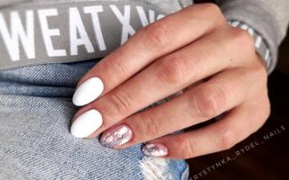 Алый маникюр с белоснежными узорами: маникюр, фото дизайна ногтей