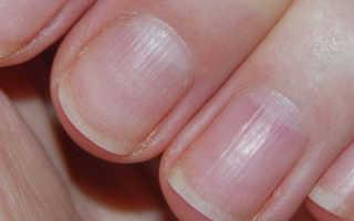 Волнистые ногти на руках – причины, почему ногти становятся волнистыми